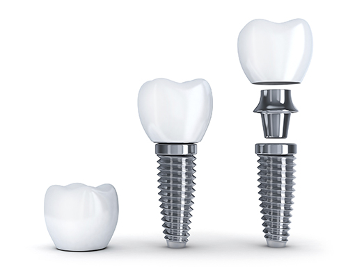 2 Dental Implants Pieces Diagram iStock 000077095183 Large 500px