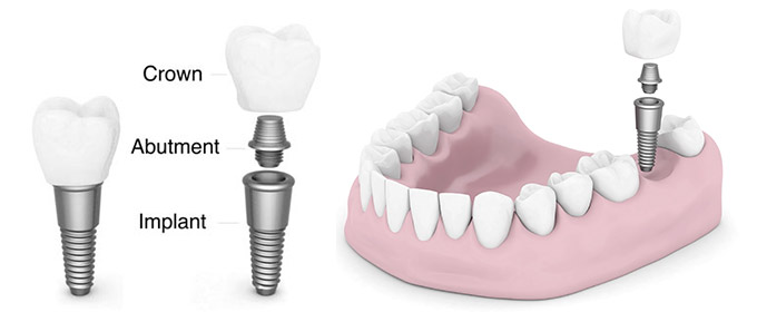 3 dental implant 1514284970881
